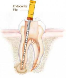Andover dentists | Root canals