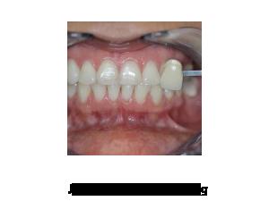 Andover dentist   Kor Teeth Whitening testimonials, berfore and after   Dr Wojtkun