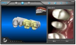 Andover dentists  | Dr Wojtkun | Dr Sendek