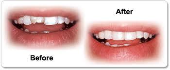 Andover dentists | Dr. Wojtkun | Dr Sendek