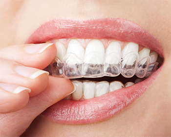 Andover braces | Invisialign clear braces