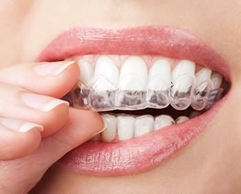 Andover braces | Invisialign clear braces