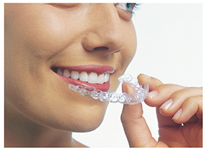 Andover dentists | Invisalign clear braces